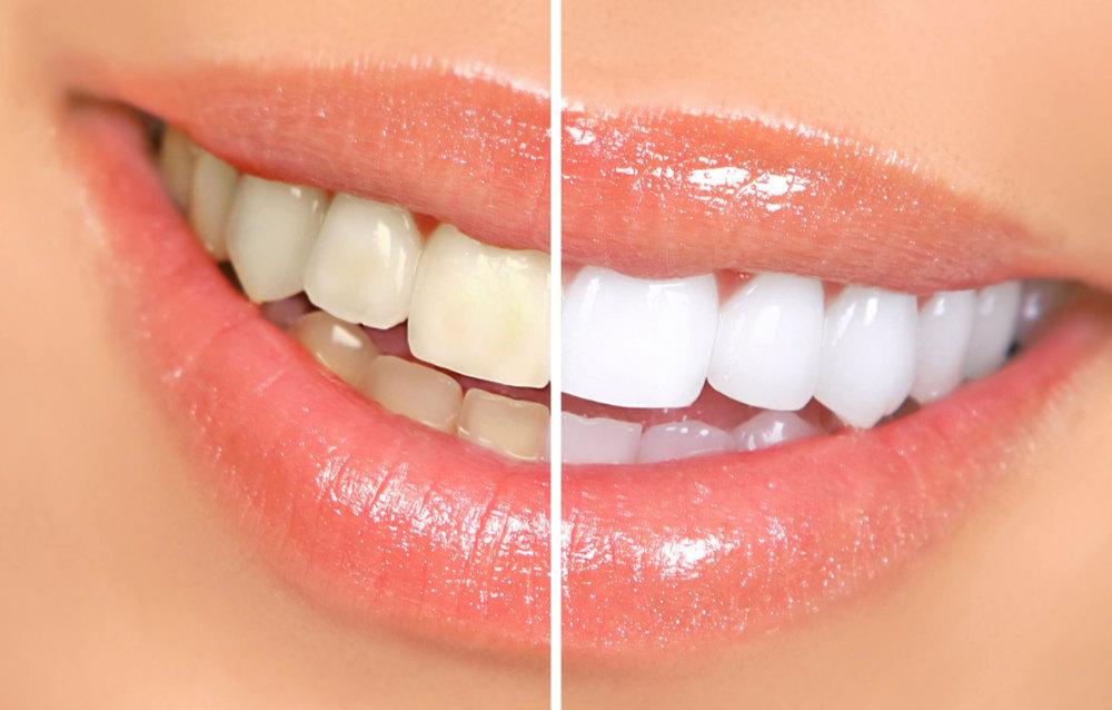 senyum alami veneer gigi