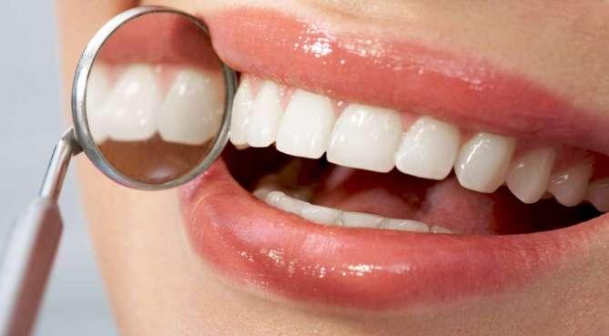 veneer gigi tahan lama jangka waktu veneer gigi