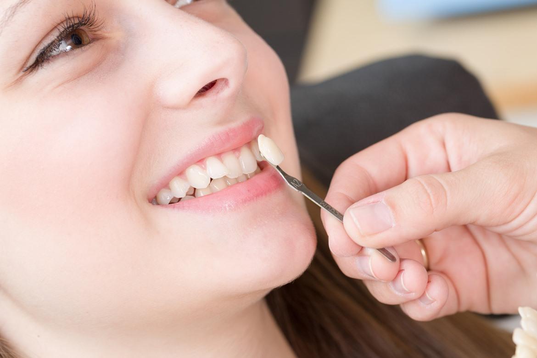 semua kerusakan gigi praktis hilang dengan veneer gigi