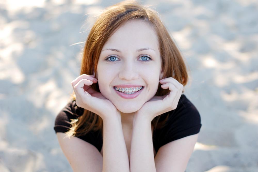 behel gigi bikin senyum menawan