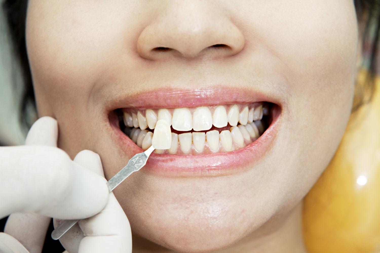 dapatkan senyuman menawan dengan veneer gigi